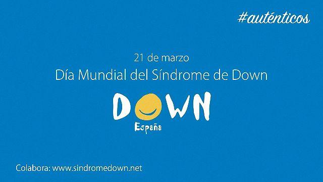 Cabecera Auténticos-1 - Síndrome de Dawn.