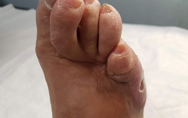 Concienciar sobre la prevención del pie diabético, objetivo del Colegio de Podólogos C-LM en Día Mundial de la Diabetes.